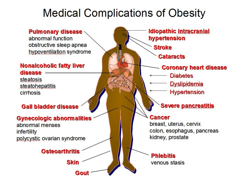 MedicalComplicationsofObesity