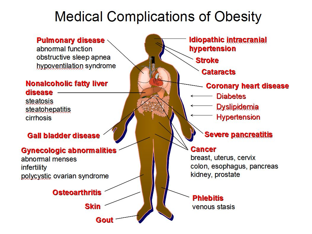 How Will Obesity Rates in the Future Affect Your Healthcare Career?